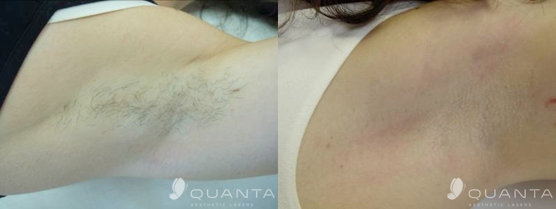 Copy of Hair-Removal-Armpit-755-Before_After.png