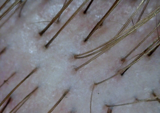 Normal, healthy scalp