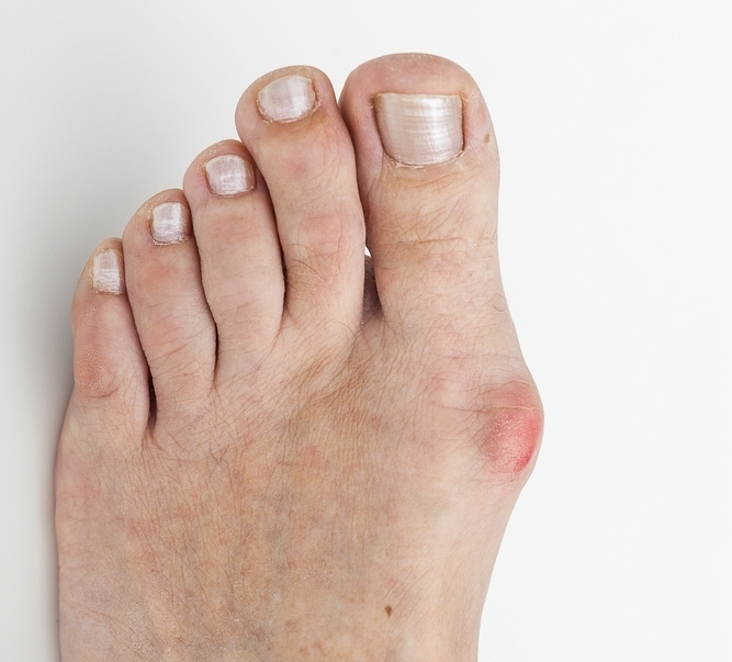 treatment for bunion pain by foot doctors in rocky hill and hartford, ct