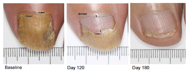 laser therapy for ugly nail fungus in rocky hill and hartford, ct