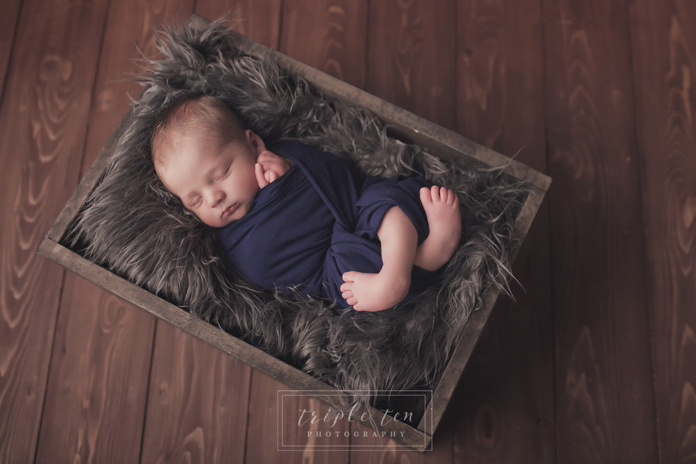 newborn photos with club foot.jpg