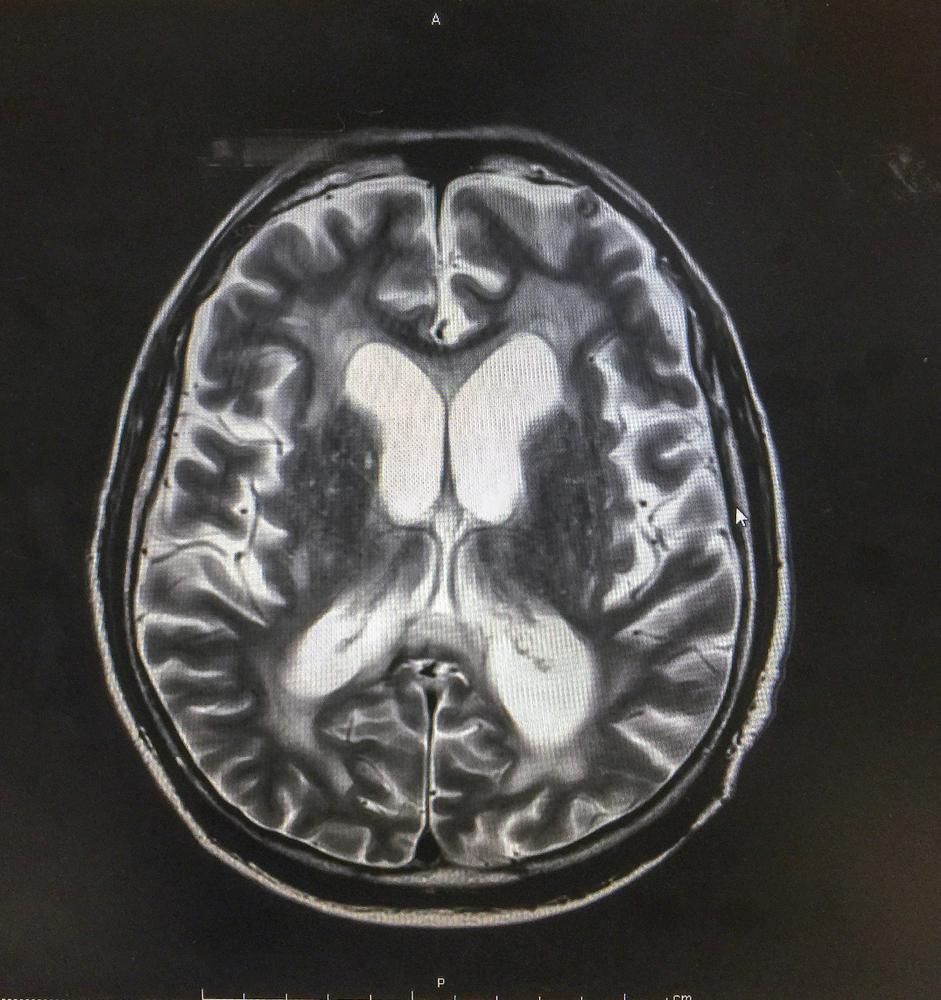MRI brain showed Hydrocephalus