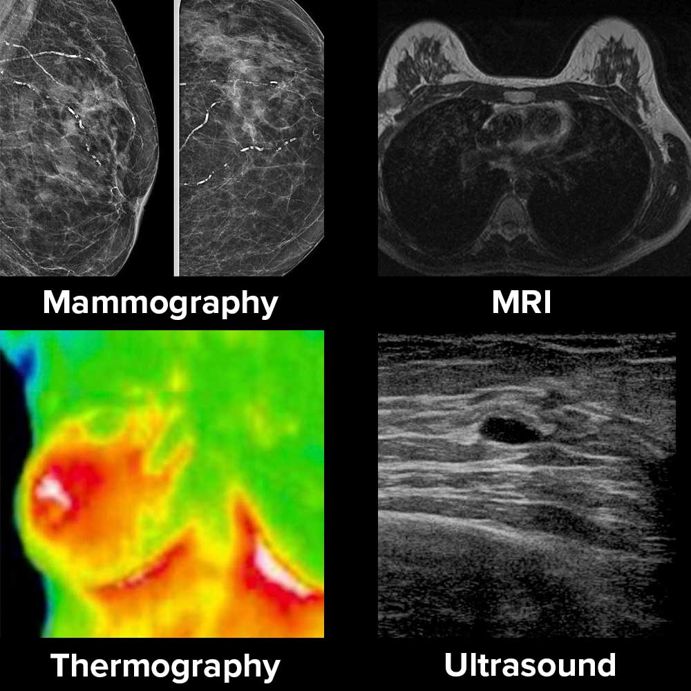breast_imaging_examples_naturopathic_specialists.jpg
