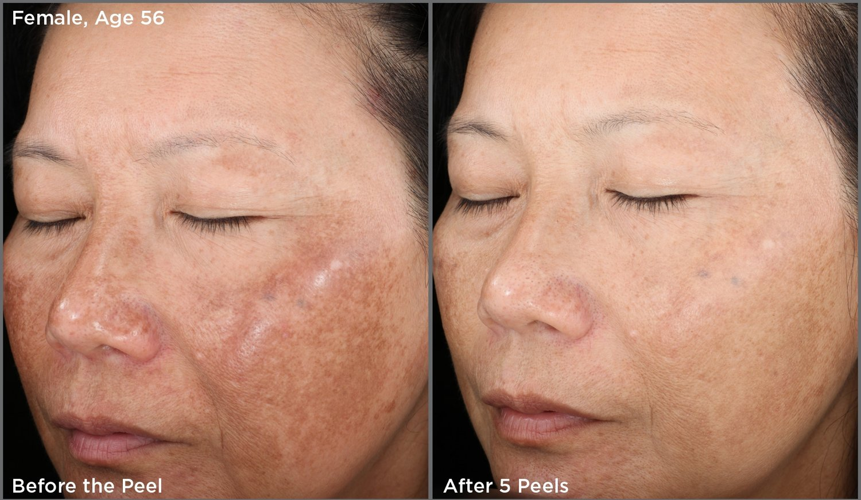 Chemical Peel Options Hidden Gem Luxury Tca Peeling Skinmedica Before After