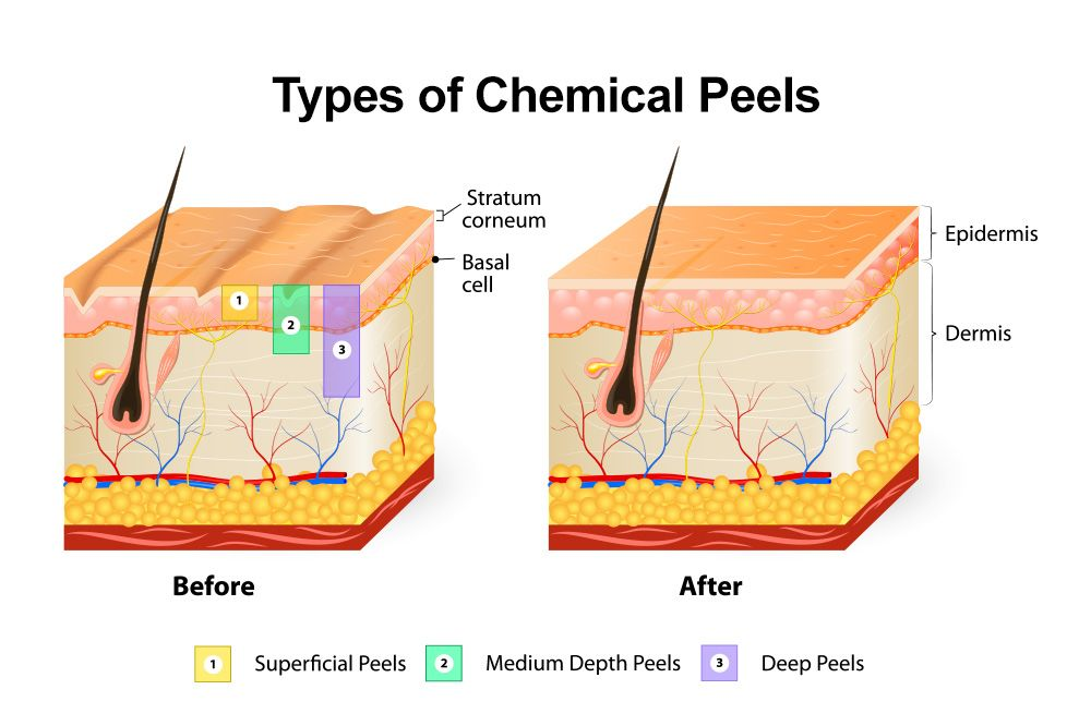 types_of_chemical_peels jpg  glycolic