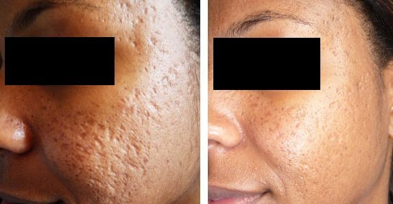 Acne-Scarring-Before-After.jpg