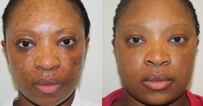 Dark-Skin-Treatment-1.png