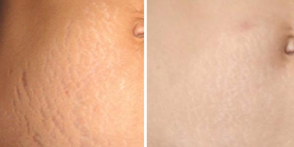 MIcro-needle-stretch-marks-abdomen.jpg