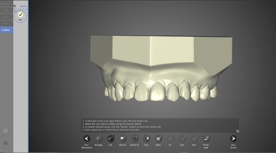 Interproximal area scan for orthodontics - Capture important interproximal areas with colLab software and an Identica scanner.