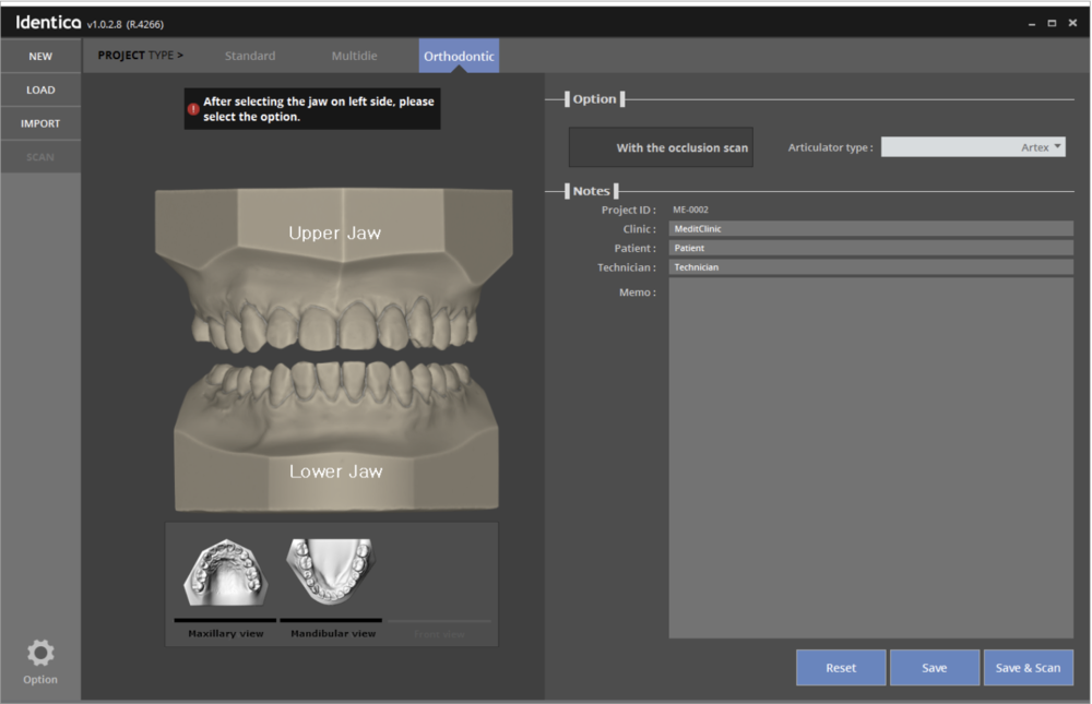 You can now get the optimized scan data for orthodontics.With the added orthodontics scan function, you can now choose between the options of scanning of lower base and upper base separately or together to get the optimized scan data for your orthodontics.The scan data is smooth and clean since all the holes are filled after scanning.