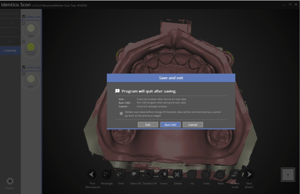 If you use our Identica Scan software through Dental DB software, you can run the Exocad CAD software immediately after the scanning.You can now see 'Run CAD' button after the scanning.