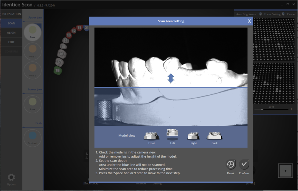 The previous version allowed for scanning areas adjustment from the front view only. With this new release users can adjust from front, left, right, rear views to set scanning areas more accurately for each case.