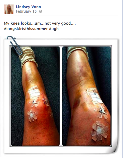 "Lindsey Vonn's report to her thousands of Facebook friends -- note the wistful ""long skirts this summer"" hashtag ..."