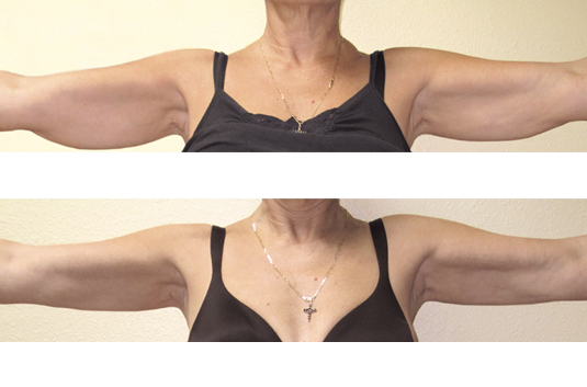 In 5-weeks, after (10) Body Sculpt treatments:  • Toned and lifted underarms