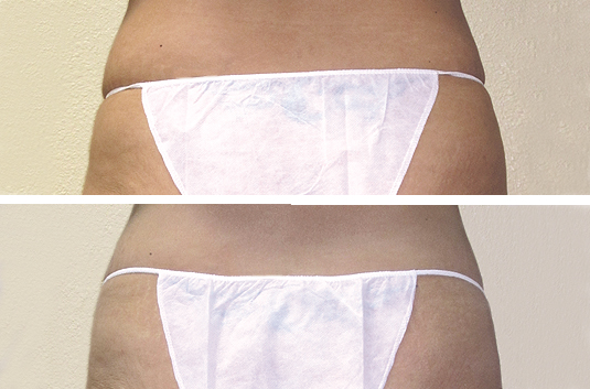 In 5-weeks, after (10) Body Sculpt treatments:  • Waistline reduction and cinching in back