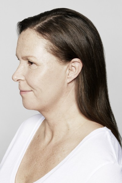 Areas treated: face and forehead Products used: Restylane Skinboosters Vital & Vital Light