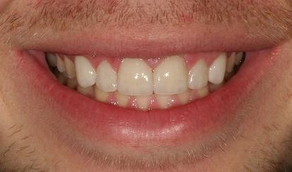patient 2 after