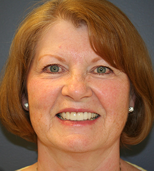 smiling patient 3