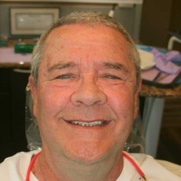 smiling patient 4