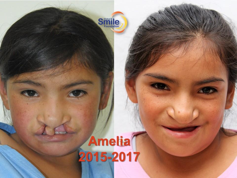 Amelia_2015_2017.jpg