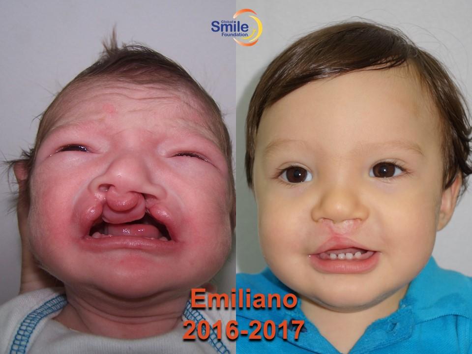 Emiliano_2016_2017.jpg