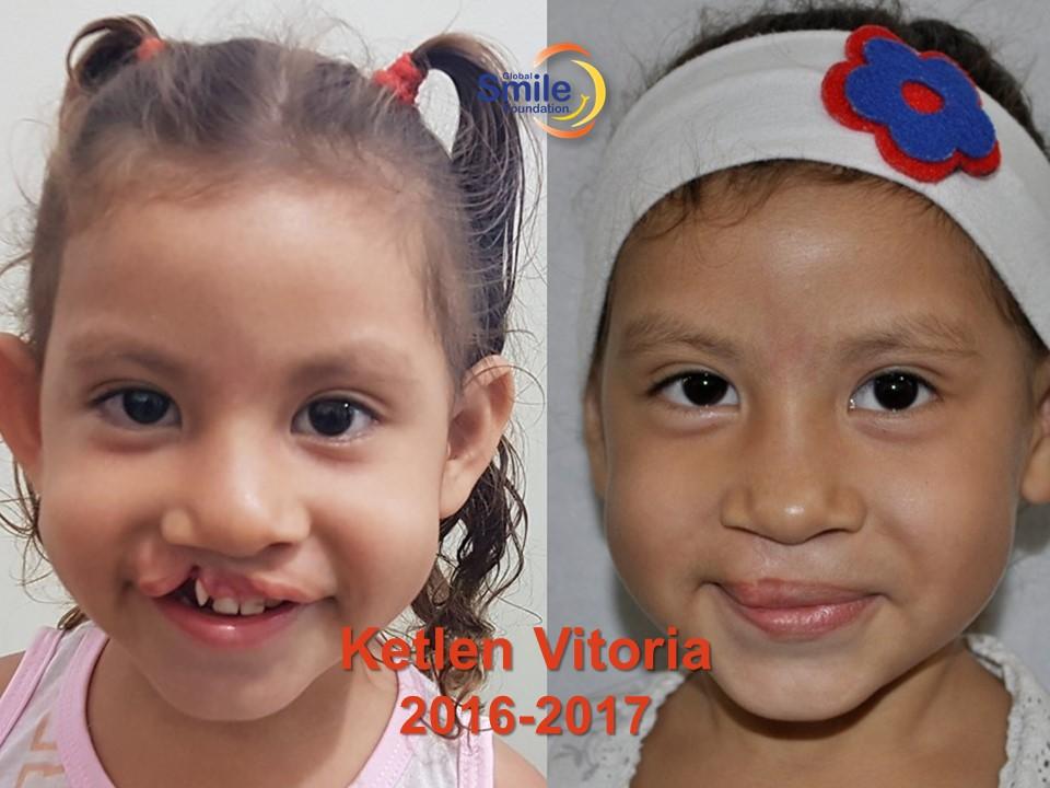 Ketlen Vitpria_2016_2017.jpg