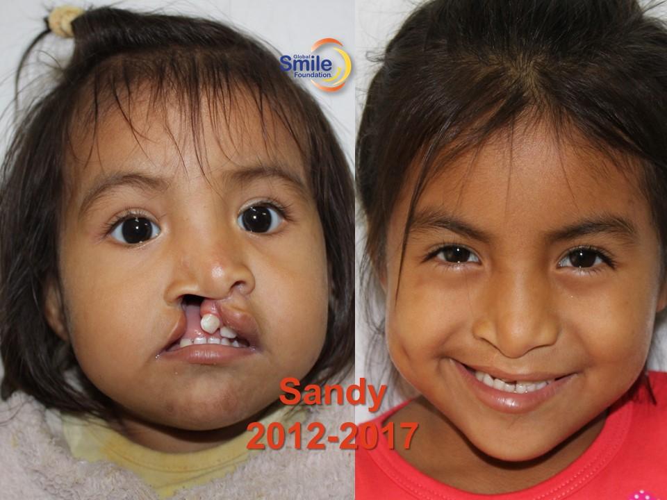 Sandy_2012_2017.jpg