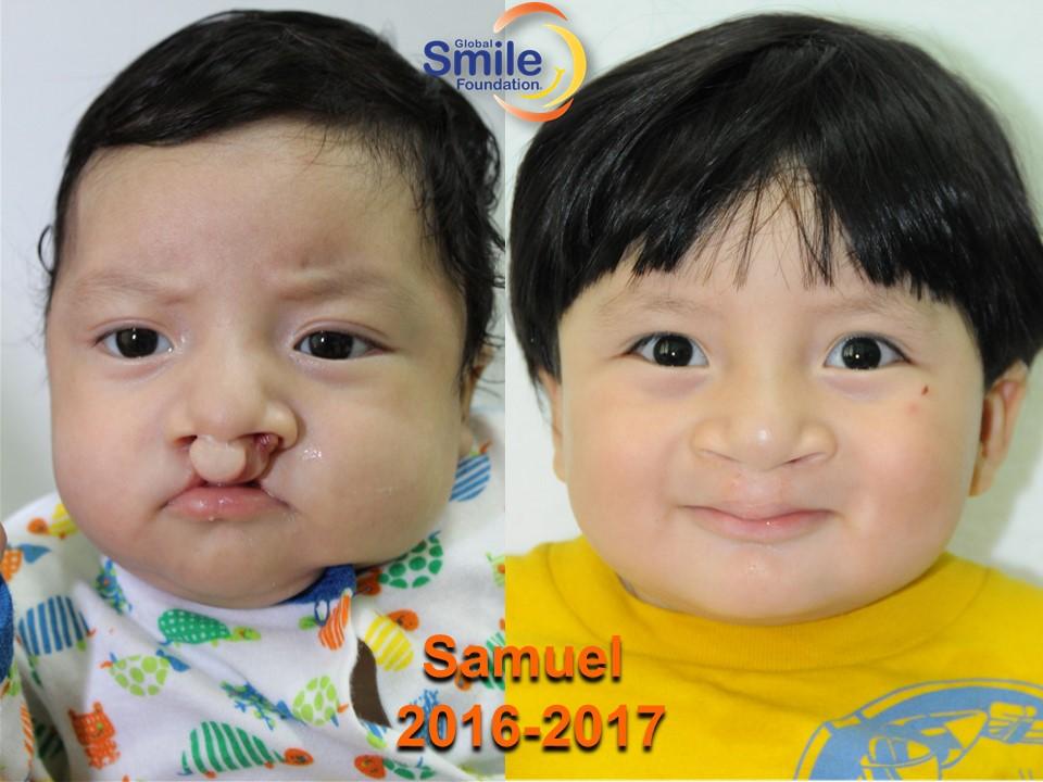 Samuel_2016_2017.jpg