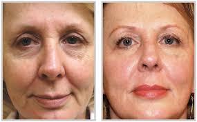 facial sagging 3.jpg