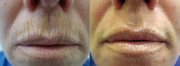 lines and wrinkles 7.jpg