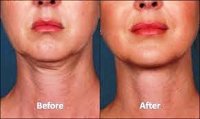 neck & chest 9.jpg