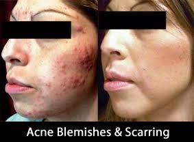 acne1_2017.jpg
