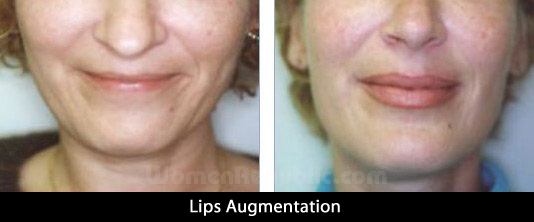 lips2_2017.jpg