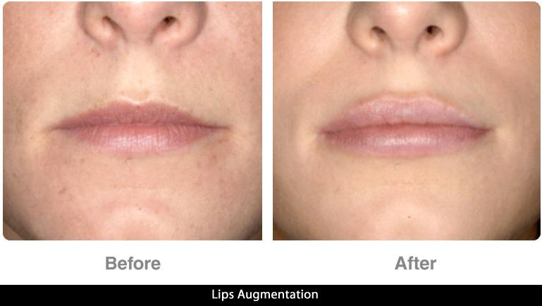 lips3_2017.jpg