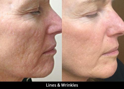 lines_winkles1.jpg