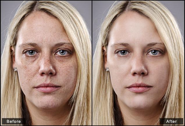 skin 3.jpg