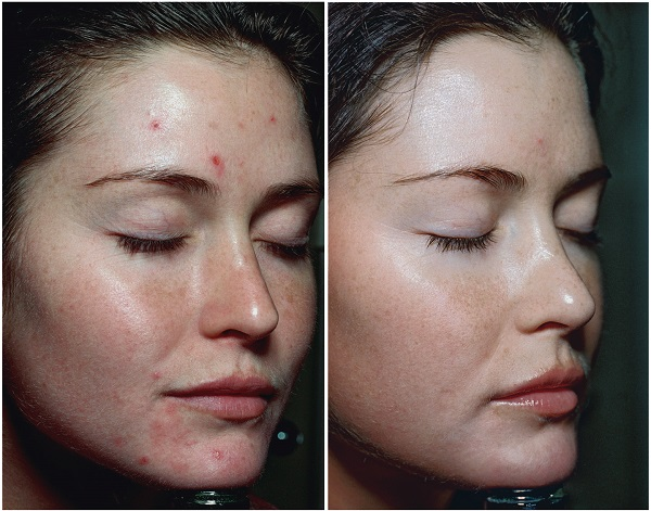 skin 2.jpg