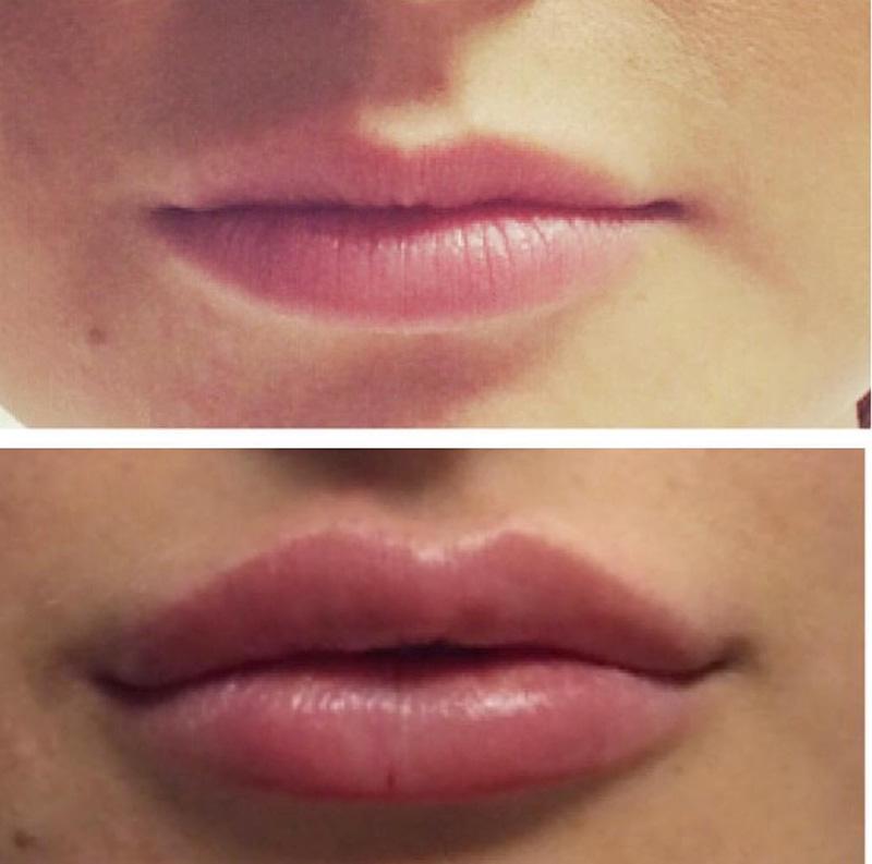 lips_02.jpg