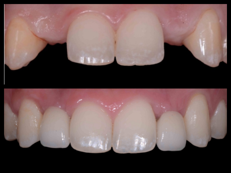 Implant Crowns - This patient presented with congenitally missing lateral incisors. We placed implants and porcelain crowns to replace the missing teeth, all while preserving proper gingiva contours.