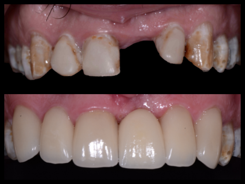 Porcelain Veneers & Implant Crown - Heavy areas of decay and staining on this patient's front teeth as well as a missing tooth created a complex treatment. By placing an implant and restoring the front teeth with porcelain crowns and veneers we gave the patient a very esthetic smile.