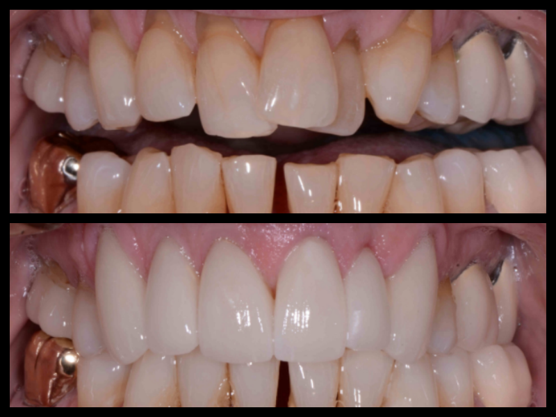 Porcelain Veneers - Severe crowding and loss of gum tissue made this a challenging case to restore. We were able to deliver the patient an excellent outcome by using porcelain veneers and crowns to straighten the teeth and recontour the gum tissue.