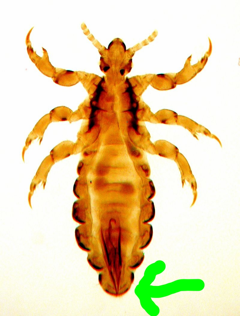 The rear portion of the male  exoskeleton is rounded and tilts upward, with the anal and sexual organs located on the louse's back. This arrangement enable the male louse to crawl beneath the female for the purpose of copulation.     www.awaylice.com           531 Hardee Street Dallas GA 30132       info@awaylice.com