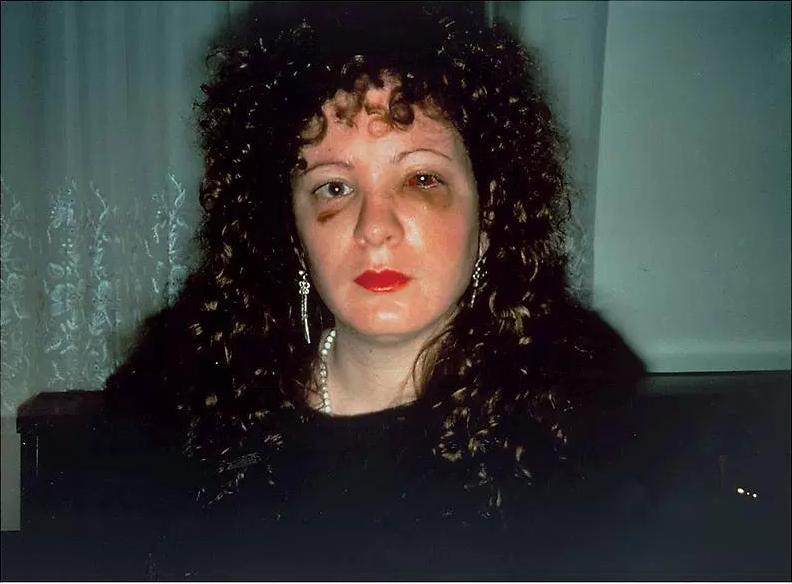Nan Goldin, 'Nan one month after being battered'(1984) New York