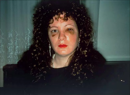 Nan Goldin, 'Nan one month after being battered' (1984) New York
