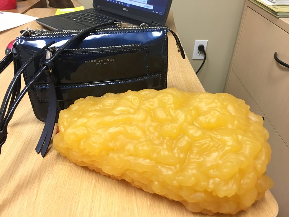 Model of 5 lbs of fat at my endocrinologist. -