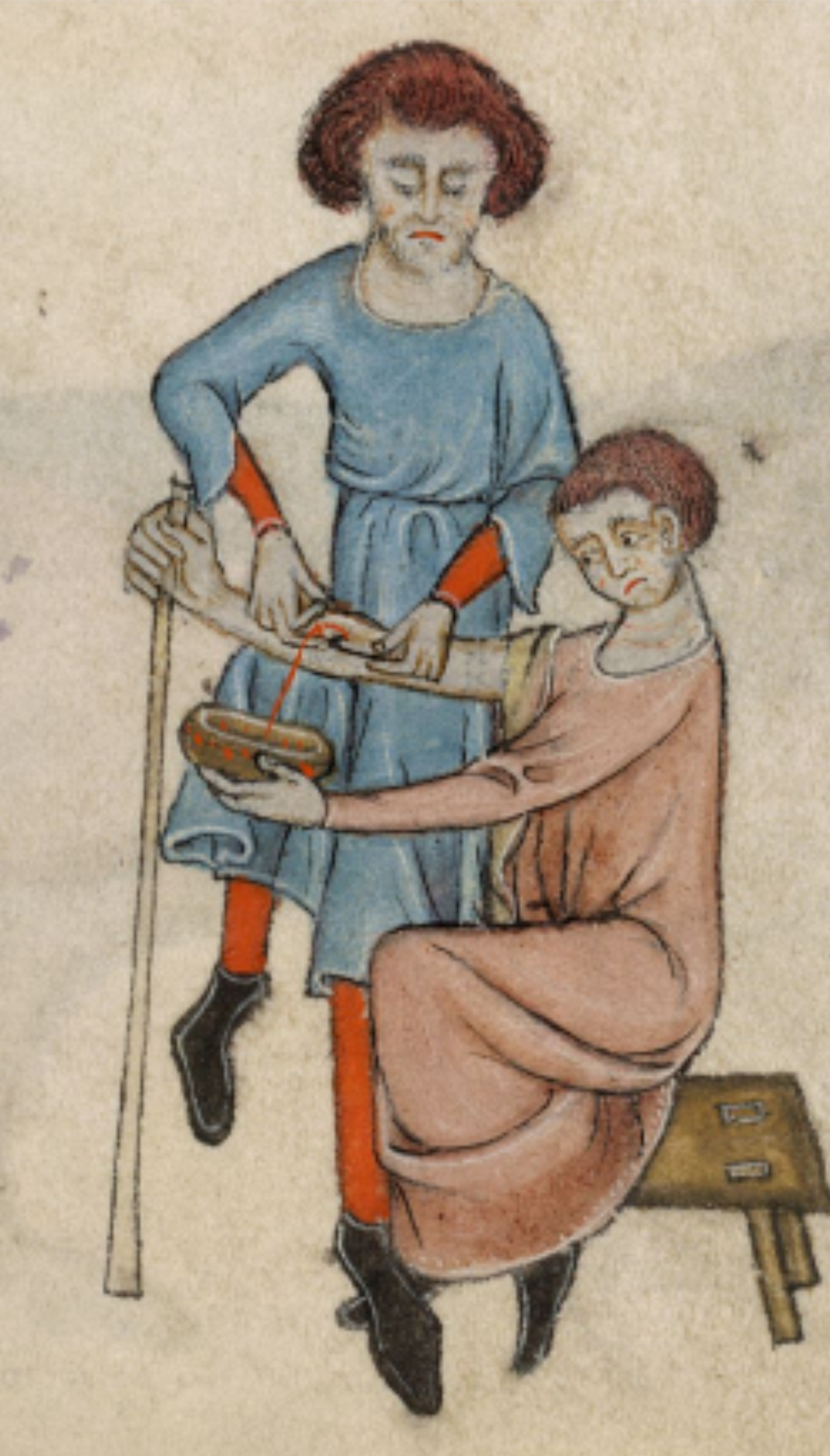 6. Bloodletting in the LuttrellPsalter. © British Library Board. London, British Library, Additional 42130 (Lincoln, 2nd quarter of the 14th Century), folio 61r, detail. By permission.