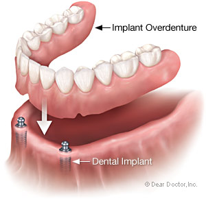 implant overdenture.png
