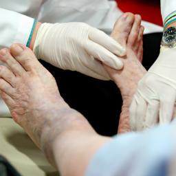 Foot Cysts & Tumors