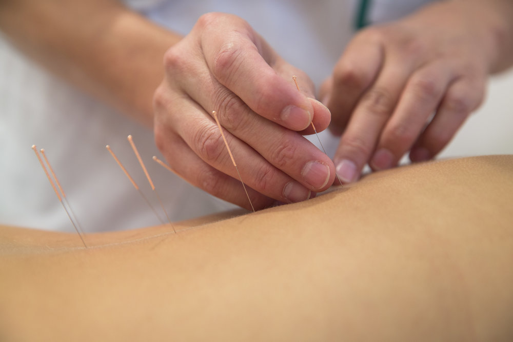 Acupuncture - Acupuncture is a healing art that has been practice for thousands of years. Even though it is ancient in origin, it still holds consistent in its ability to bring balance to pain, sickness, and disease. Modern acupuncture consists of stimulating the body's nervous system in specific ways, using filament needles, to bring about a healing response.
