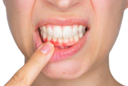 Gum Recession.jpg